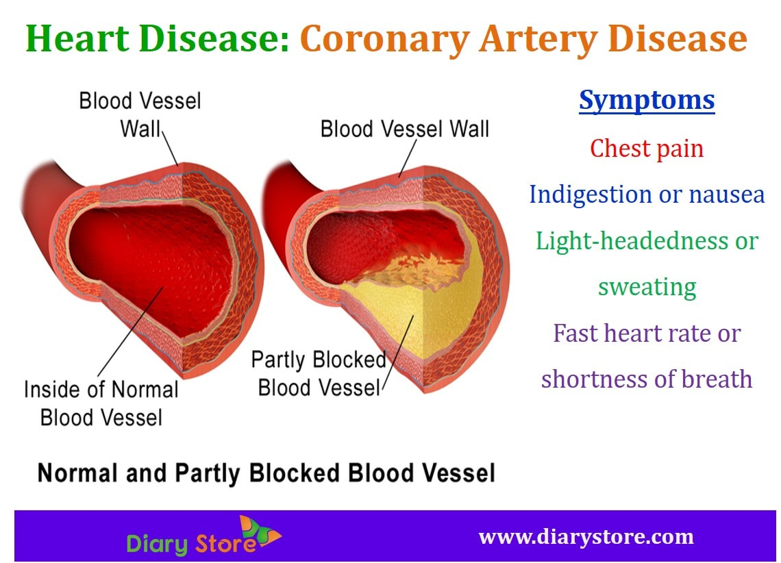 an introduction to the various symptoms of coronary heart disease Coronary artery disease (cad) is caused by the narrowing of the large blood vessels that supply the heart with oxygen read about the symptoms.