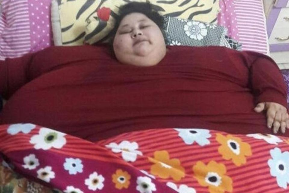 Worlds Fattest Woman 500 Kg Weight Loss Surgery In India-9461