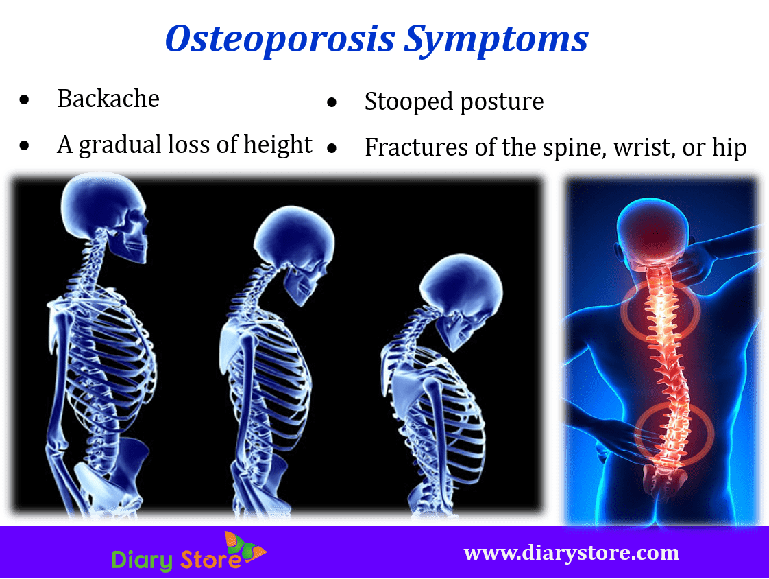 the cause and prevention of osteoporosis Treatment of osteoporosis is aimed at preventing or reducing bone fractures and  maintaining or increasing bone.