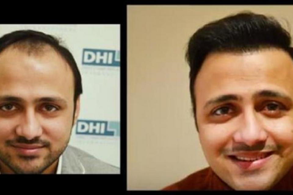 hair transplant cost in bangalore